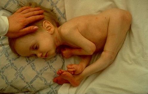 L'effet de la radioactivité sur le corps d'un enfant !